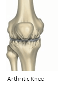 arthritic knee treatment San Diego