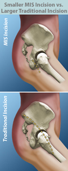 minimally invasive hip surgery
